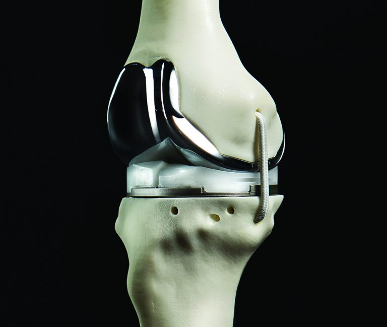 The Future Is Now: Christ Hospital Creates 3D-Printed Knee Implants
